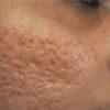 RF Fractional for Scars