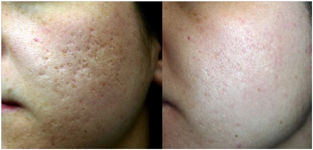 pimples scar reduction