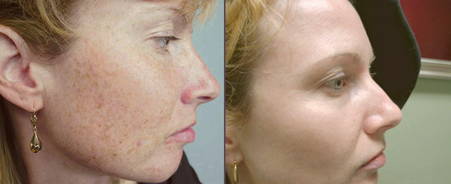 laser treatment for face skin