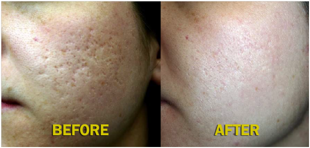 Advanced Medical Camp for Acne Scar @ Almeka