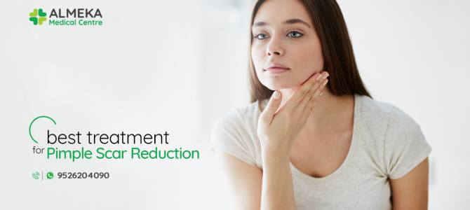 What is the best treatment for Pimple Scar Reduction?