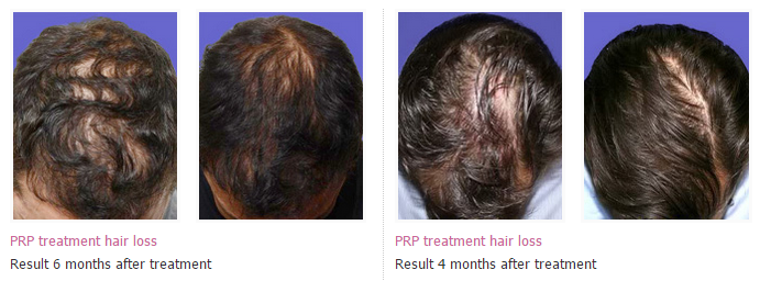 Prp Therapy For Hair Loss Prp Hair Treatment Kerala