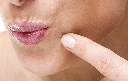 Warts Treatment: various types and outcome,