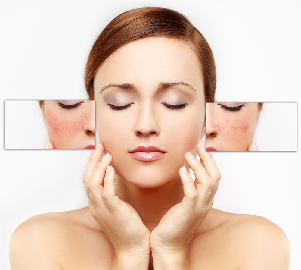 Skin laser treatment for pigmentation