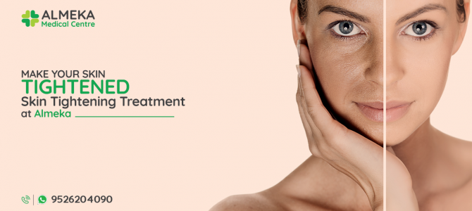 MAKE YOUR SKIN TIGHTENED. GET OUR RF TREATMENT!