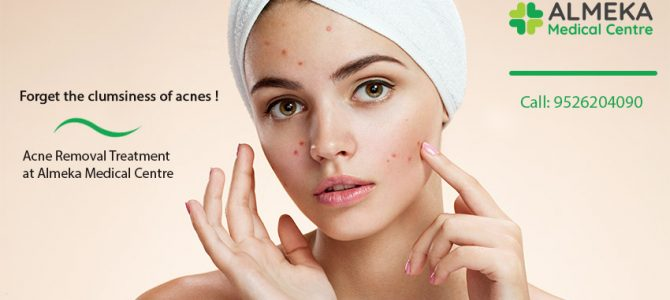 Forget the clumsiness of all type of acne!