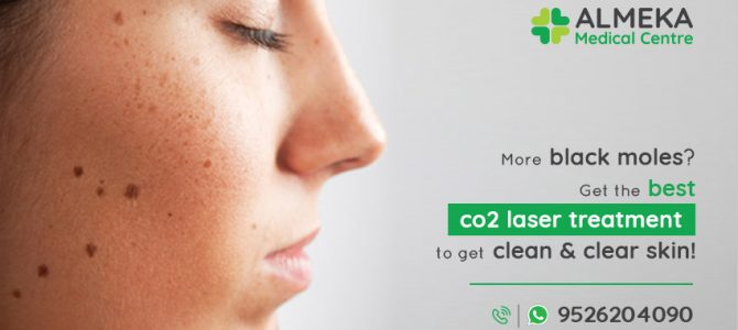 MORE BLACK MOLES? GET THE BEST CO2 LASER TREATMENT TO GET CLEAN & CLEAR SKIN!