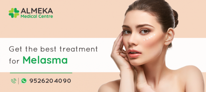 Get the best treatment  for Melasma